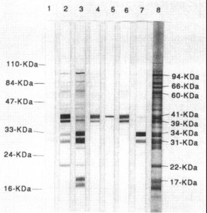 Western Blot test for lyme disease