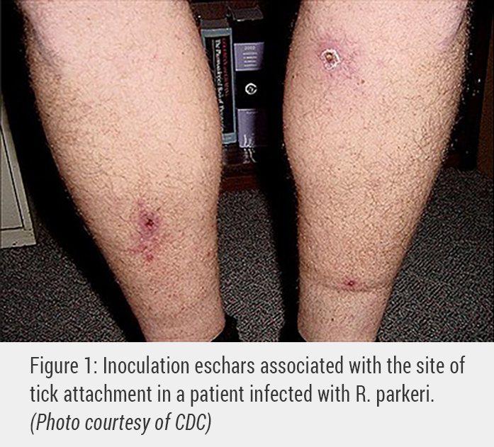 Patients may also have an eschar type of rash