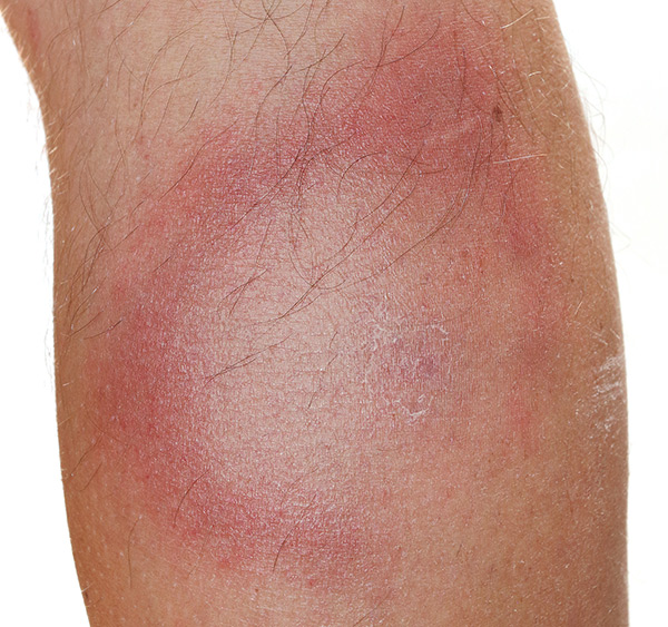 Erythema migrans rash