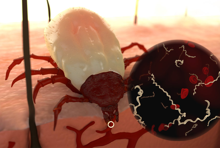 Ticks Can Transmit Multiple Infections in a Single Bite