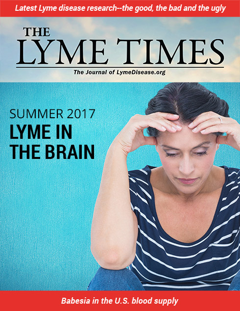 Lyme Times Lyme disease in the brain