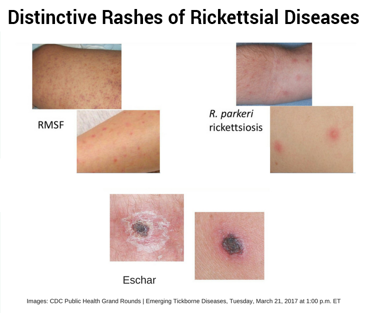distinctive rashes of rikettsial diseases
