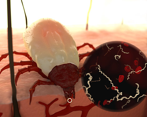 Tick bite has the potential to transmit multiple infections