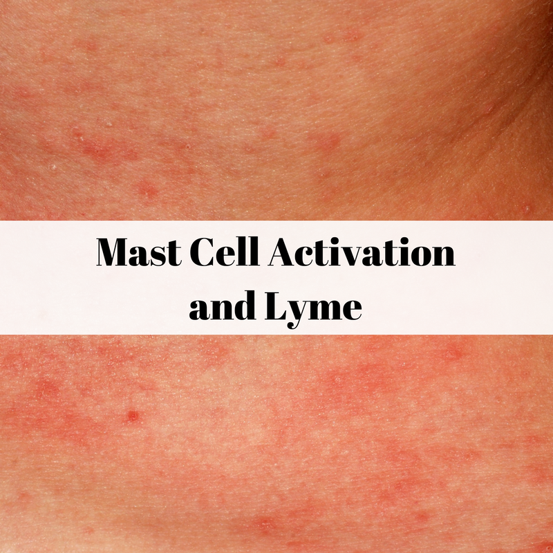 Mast cell activation (MCAS)