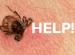 Help, I've been bitten by a tick