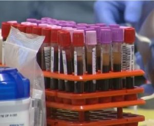 screening blood donations for babesia