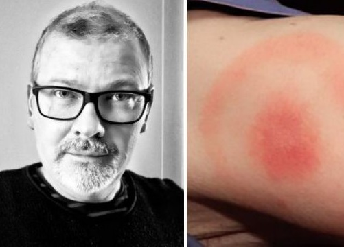 Lyme disease mistaken for stroke