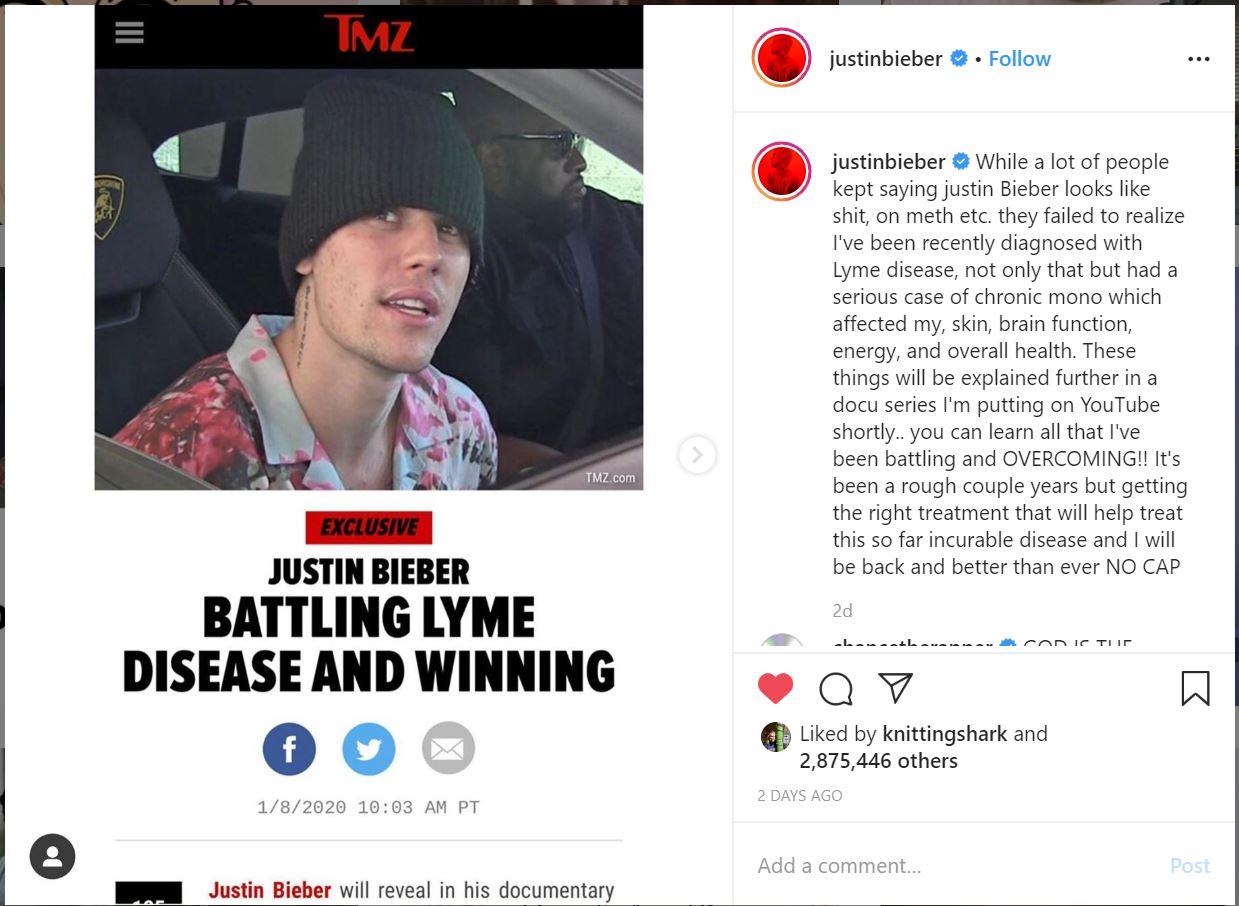 justine bieber has Lyme disease