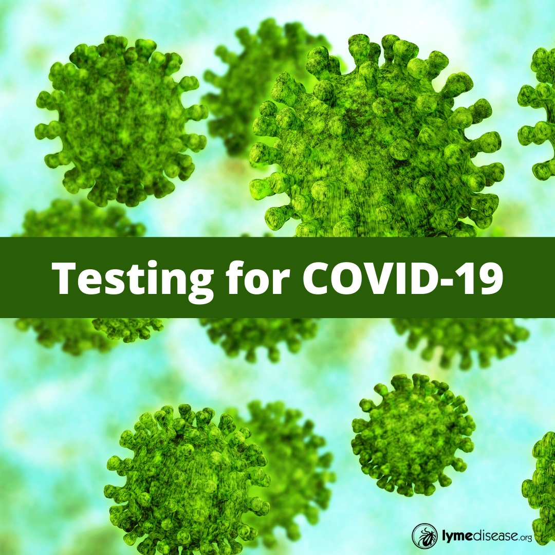 Testing for covid-19