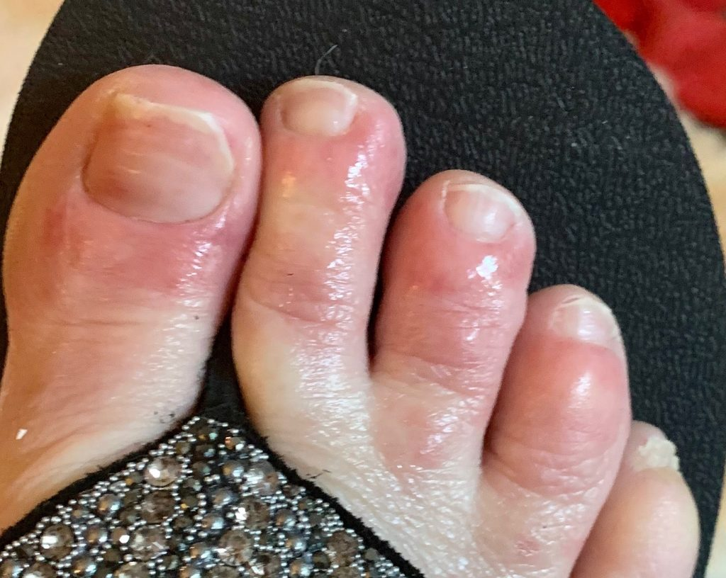 COVID toes