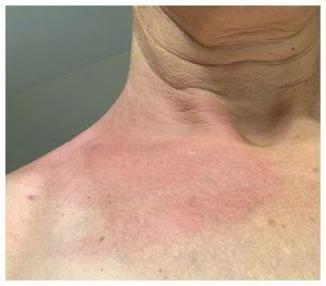 atypical lyme rash