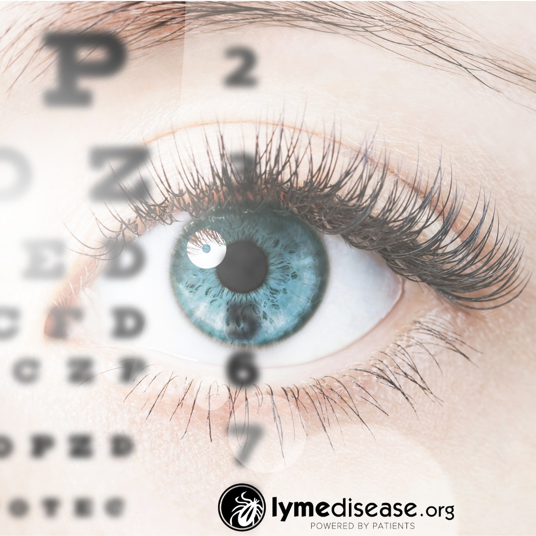 how Lyme affects eyes